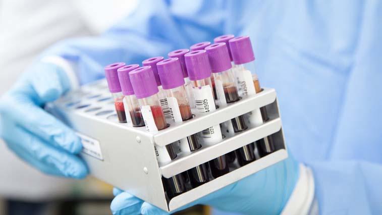 В Амурской области распространение коронавируса идет в интенсивном темпе