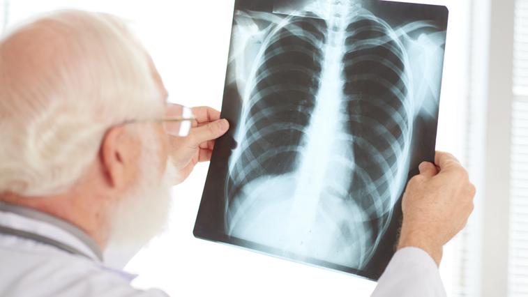 Двоих ковидных пациентов сняли с аппаратов ИВЛ в Приамурье