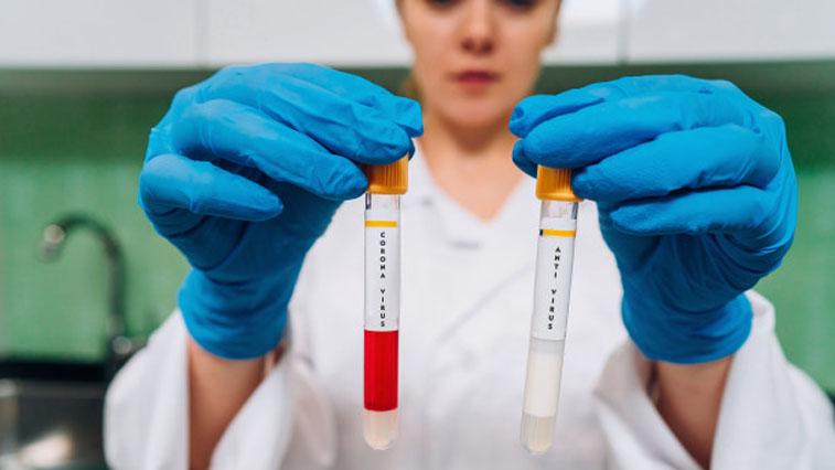 Хабаровский край вошел в список пилотных регионов по изучению иммунитета к Covid-19